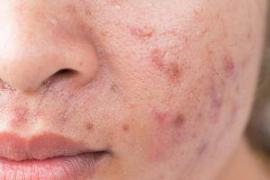 Accutane Acne Drug Widely 'Overused' Says UK Dermatologist